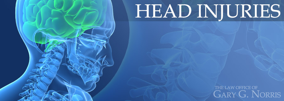 Head Injuries recommended lawyers