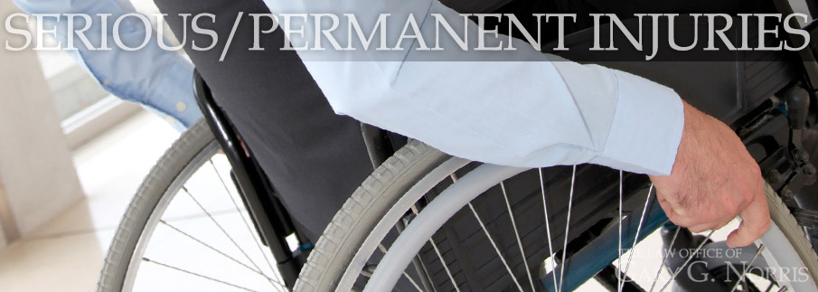 Serious/Permanent Injuries recommended lawyers